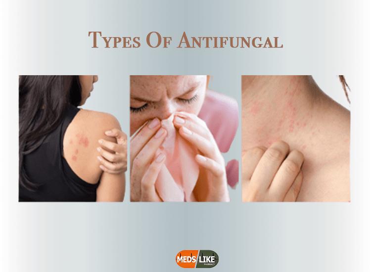 Types Of Antifungal